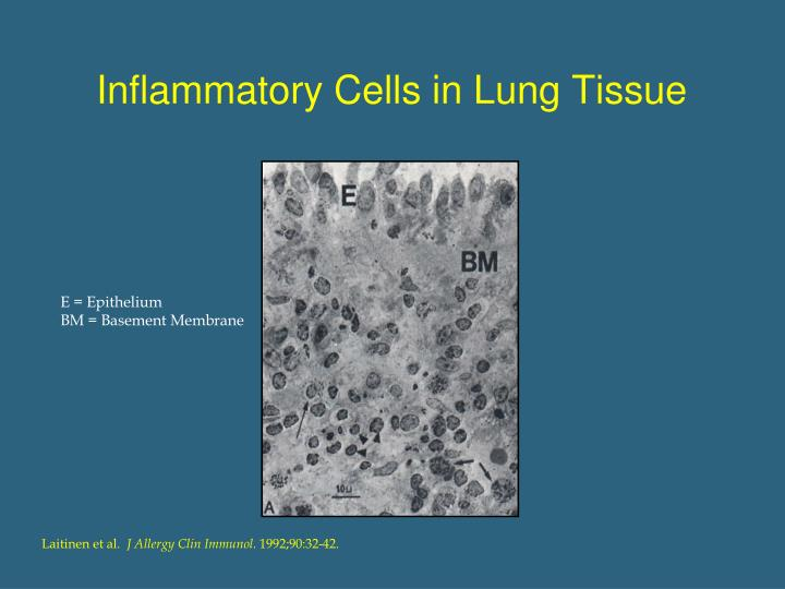 Inflammatory Cells in Lung Tissue