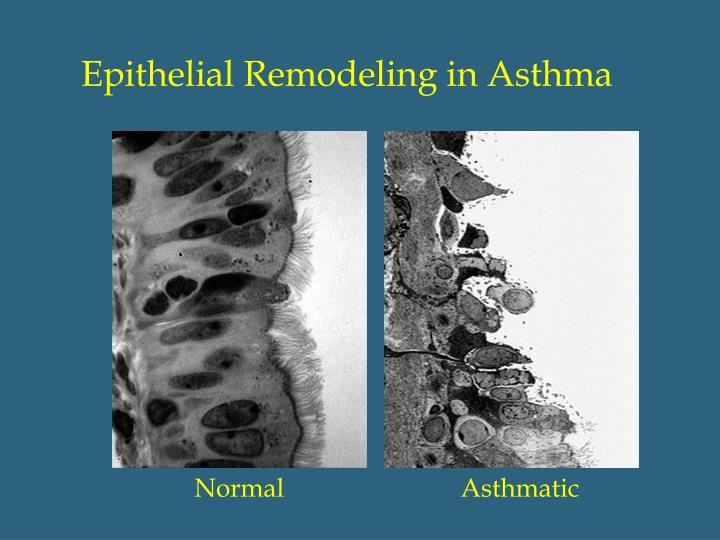 Epithelial Remodeling in Asthma