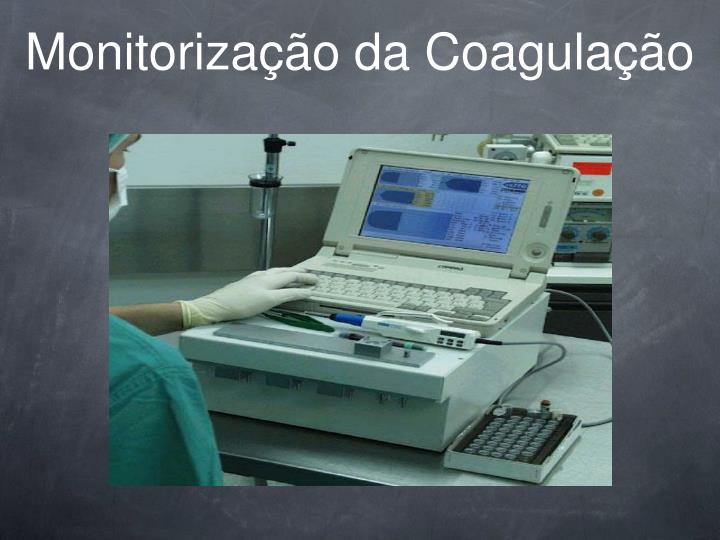 Monitorização da Coagulação