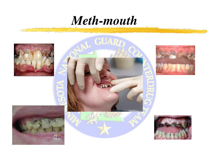 Meth-mouth
