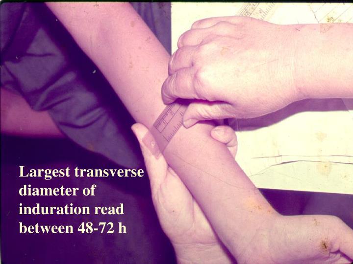 Largest transverse diameter of induration read between 48-72 h