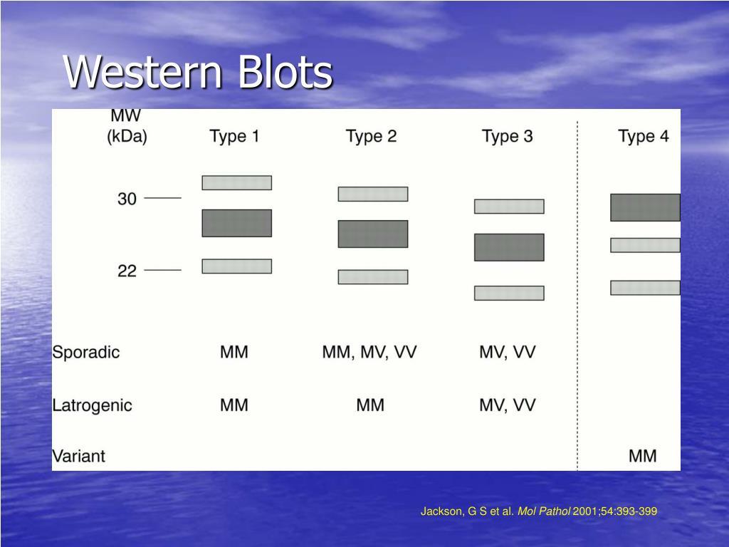 Western Blots