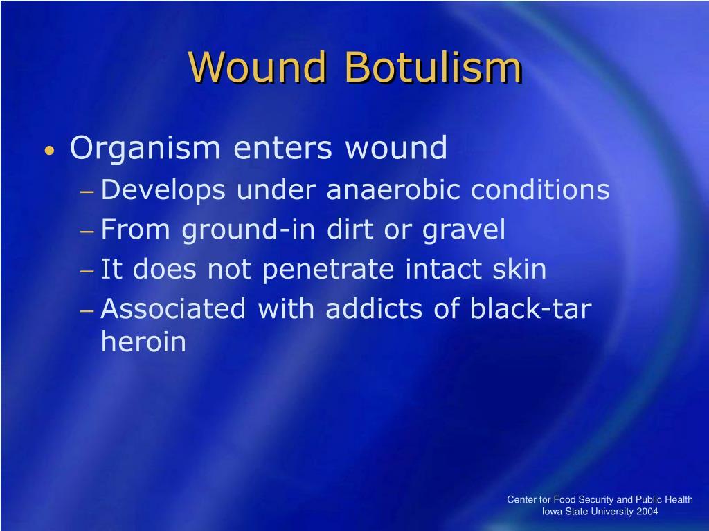 Wound Botulism