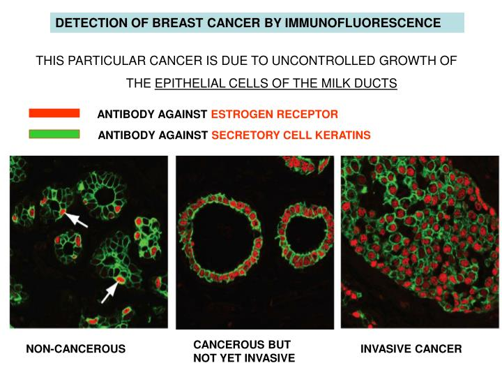 DETECTION OF BREAST CANCER BY IMMUNOFLUORESCENCE