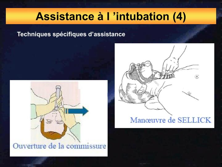 Assistance à l 'intubation (4)