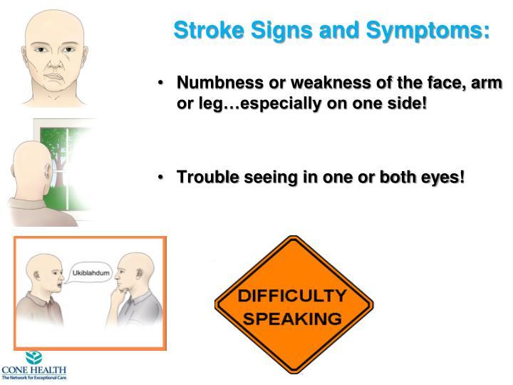 A Stroke Looks Like…