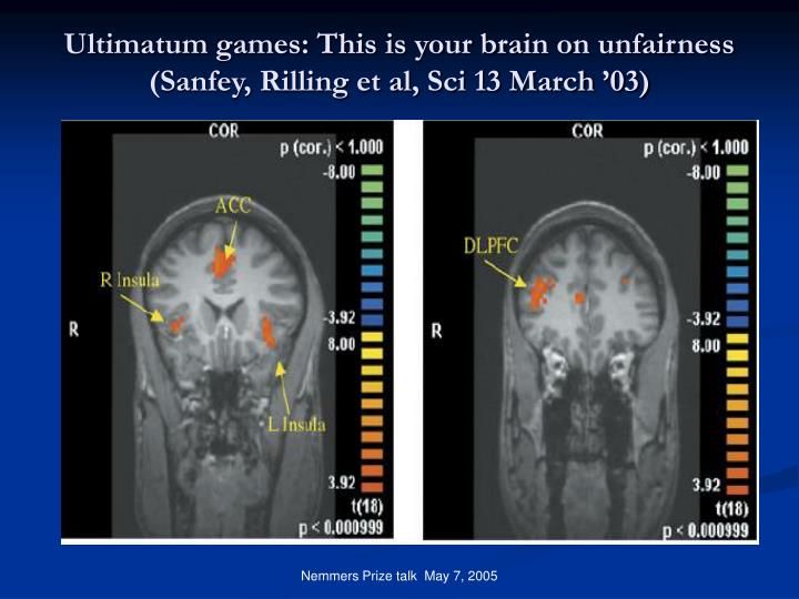 Ultimatum games: This is your brain on unfairness