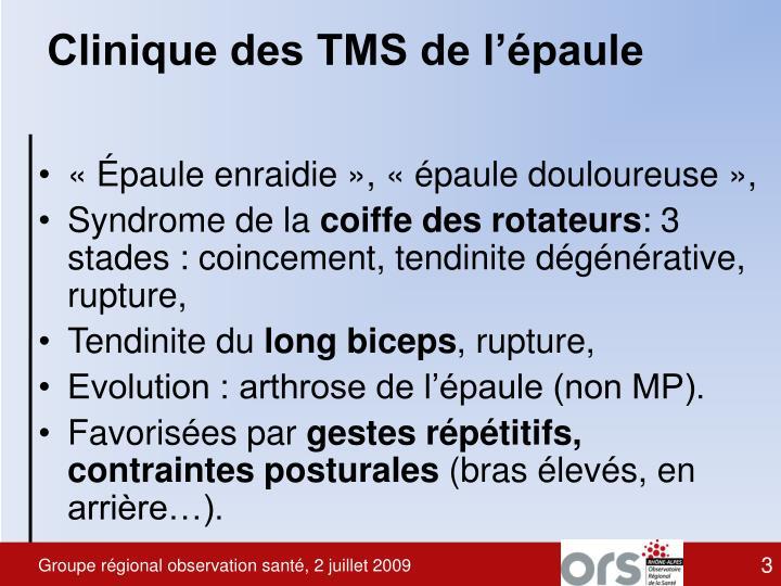 Clinique des TMS de l'épaule