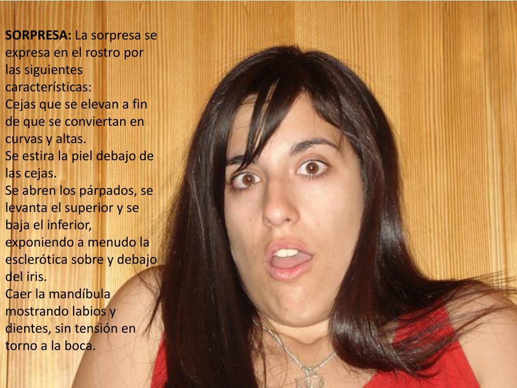 SORPRESA: