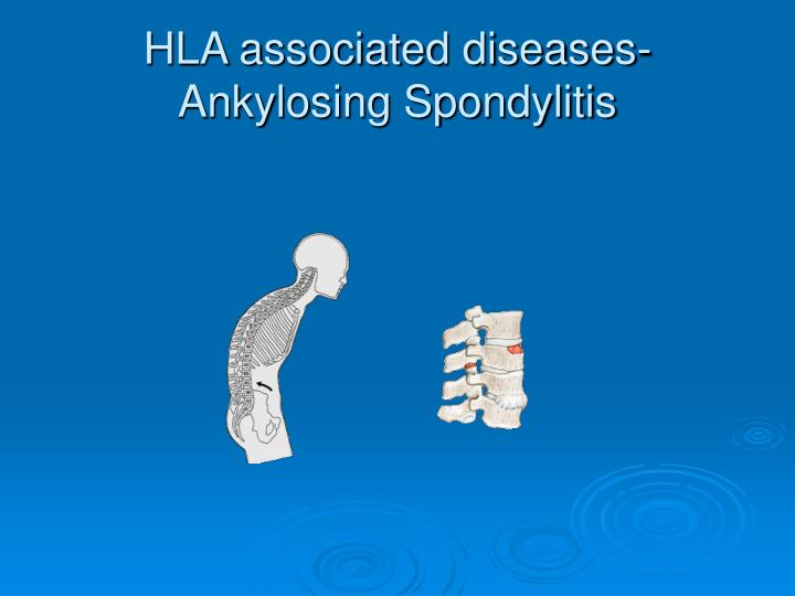 HLA associated diseases-Ankylosing Spondylitis