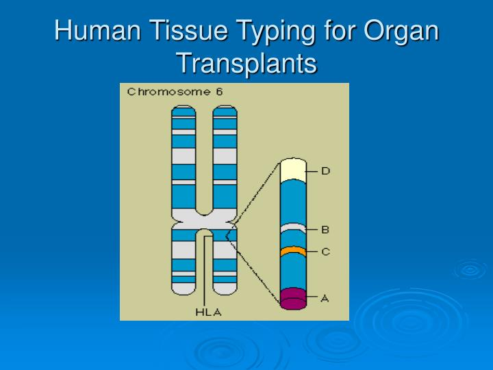 Human Tissue Typing for Organ Transplants