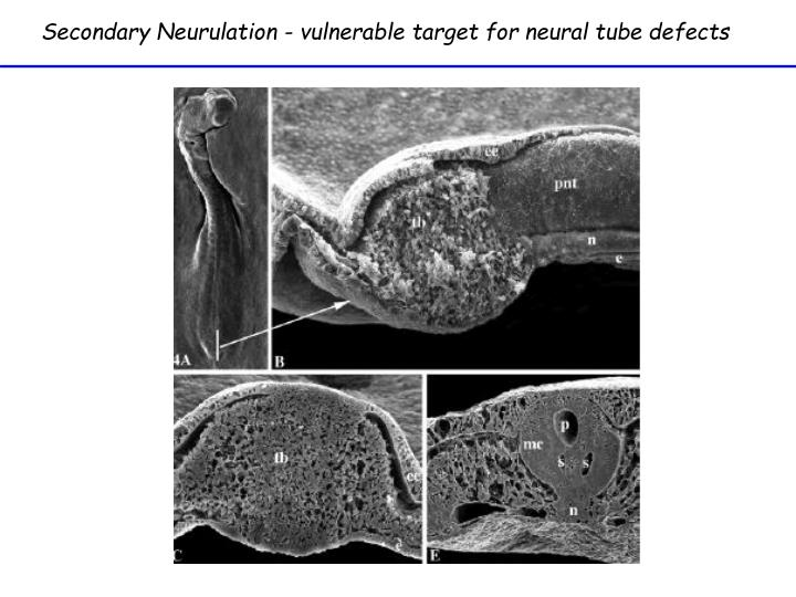 Secondary Neurulation - vulnerable target for neural tube defects