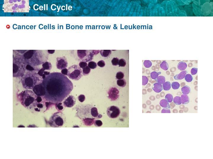Cancer Cells in Bone marrow & Leukemia