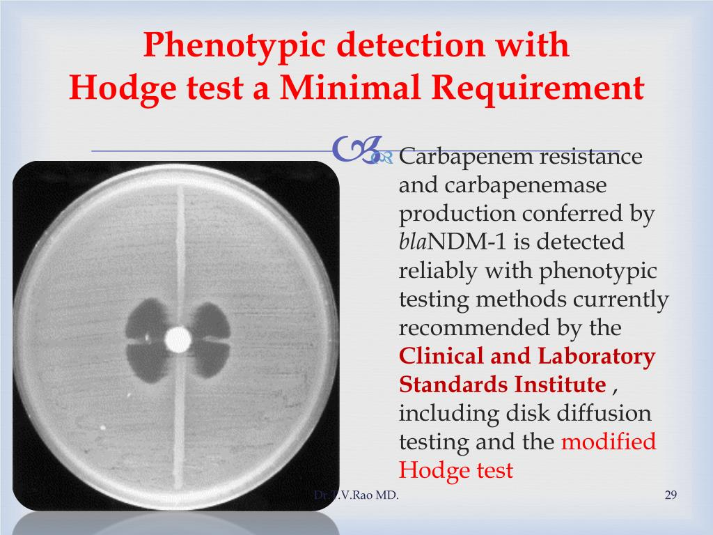 Phenotypic detection with           Hodge test a Minimal Requirement