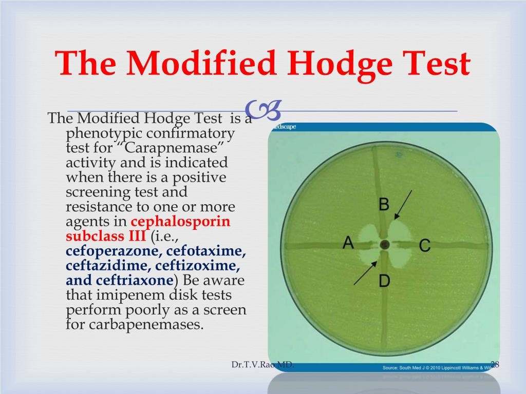 The Modified Hodge Test