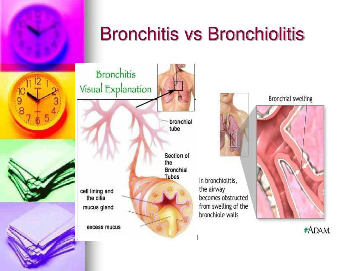 Bronchitis vs Bronchiolitis