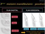 3 me molaire mandibulaire position1