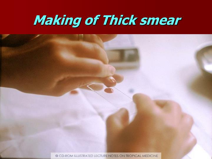 Making of Thick smear