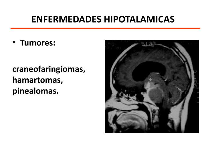 ENFERMEDADES HIPOTALAMICAS