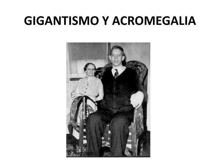 GIGANTISMO Y ACROMEGALIA