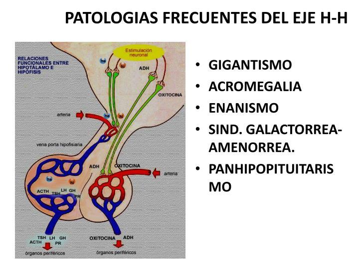 PATOLOGIAS FRECUENTES DEL EJE H-H