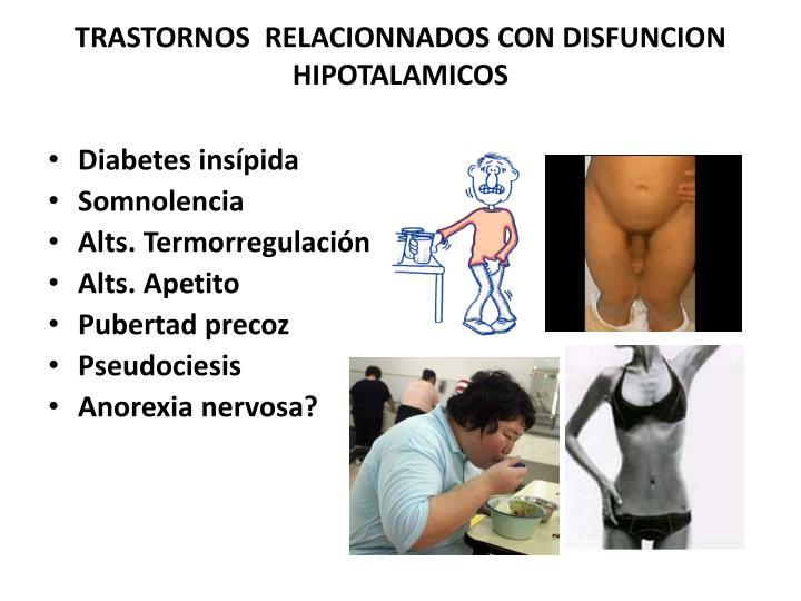 TRASTORNOS  RELACIONNADOS CON DISFUNCION HIPOTALAMICOS