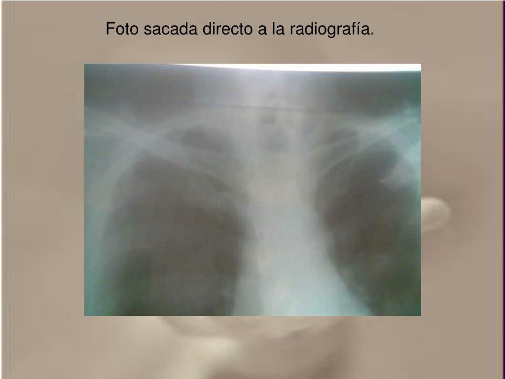 Foto sacada directo a la radiografía.