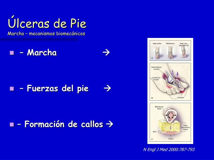 Úlceras de Pie