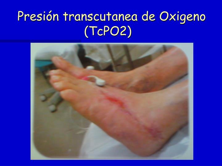 Presión transcutanea de Oxigeno