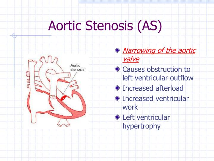 Aortic Stenosis (AS)
