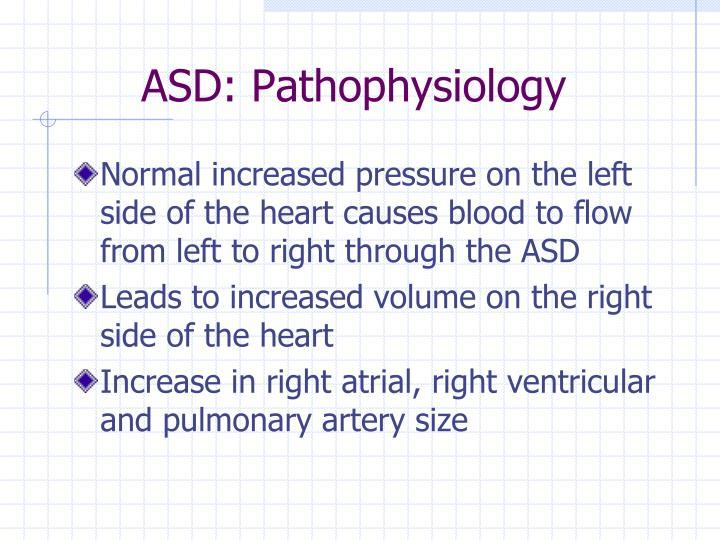 ASD: Pathophysiology