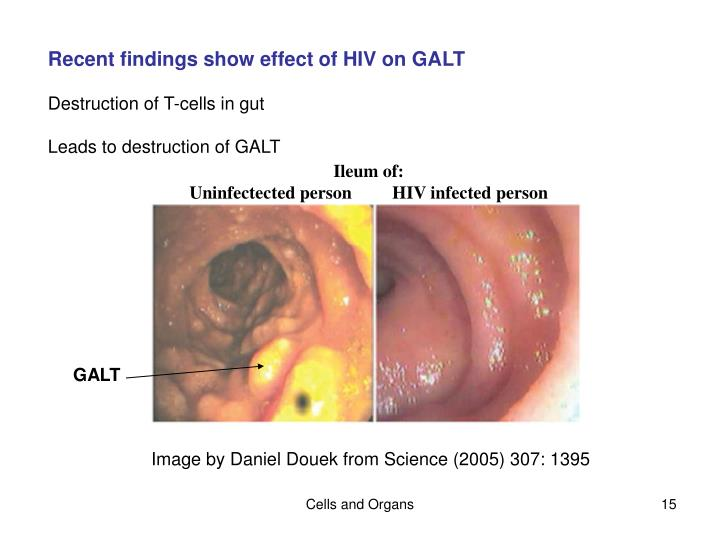 Recent findings show effect of HIV on GALT
