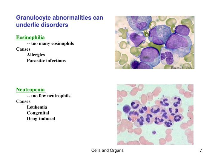 Granulocyte abnormalities can