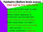 fairbairn before brain scans