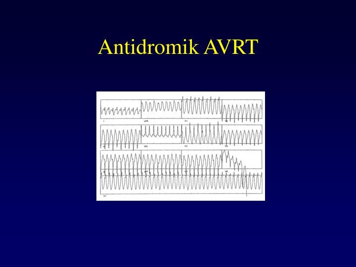 Antidromik AVRT