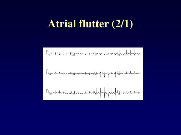 Atrial flutter (2/1)
