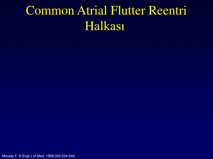 Common Atrial Flutter