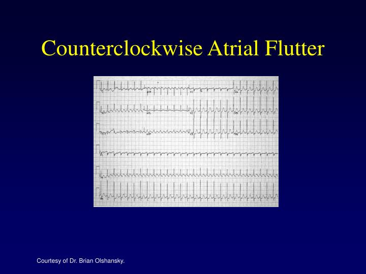Counterclockwise Atrial Flutter