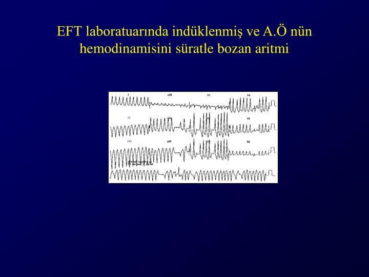 EFT laboratuarında indüklenmiş ve A.Ö nün hemodinamisini süratle bozan aritmi