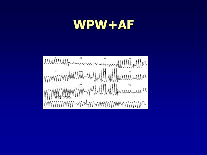 WPW+AF