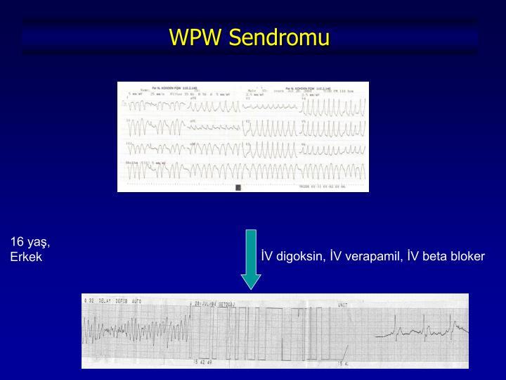 WPW Sendromu
