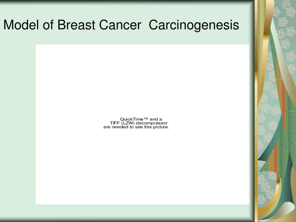 Model of Breast Cancer  Carcinogenesis