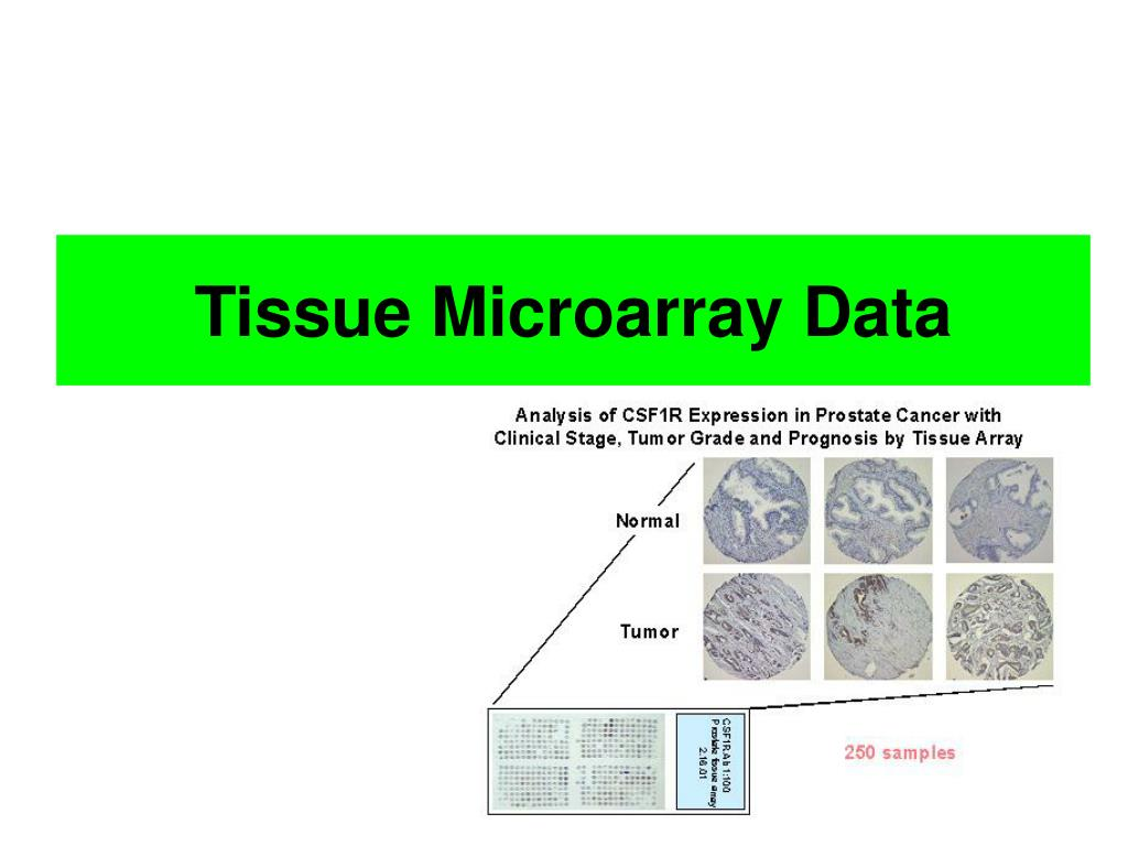 Tissue Microarray Data