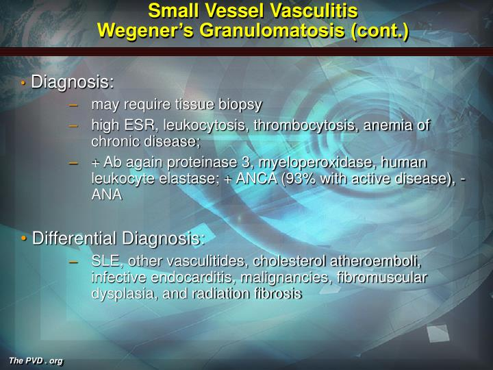 Small Vessel Vasculitis