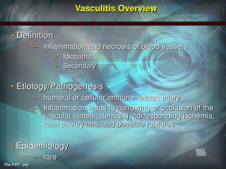Vasculitis Overview