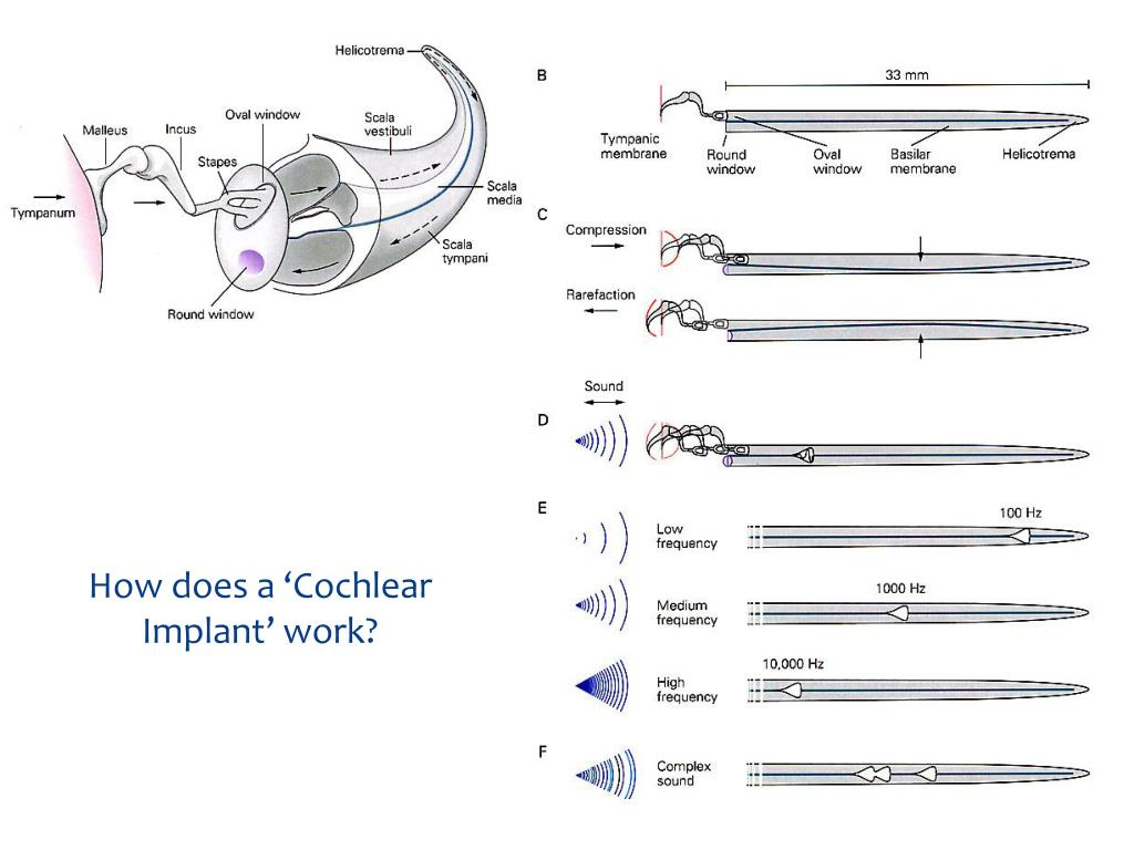 How does a 'Cochlear