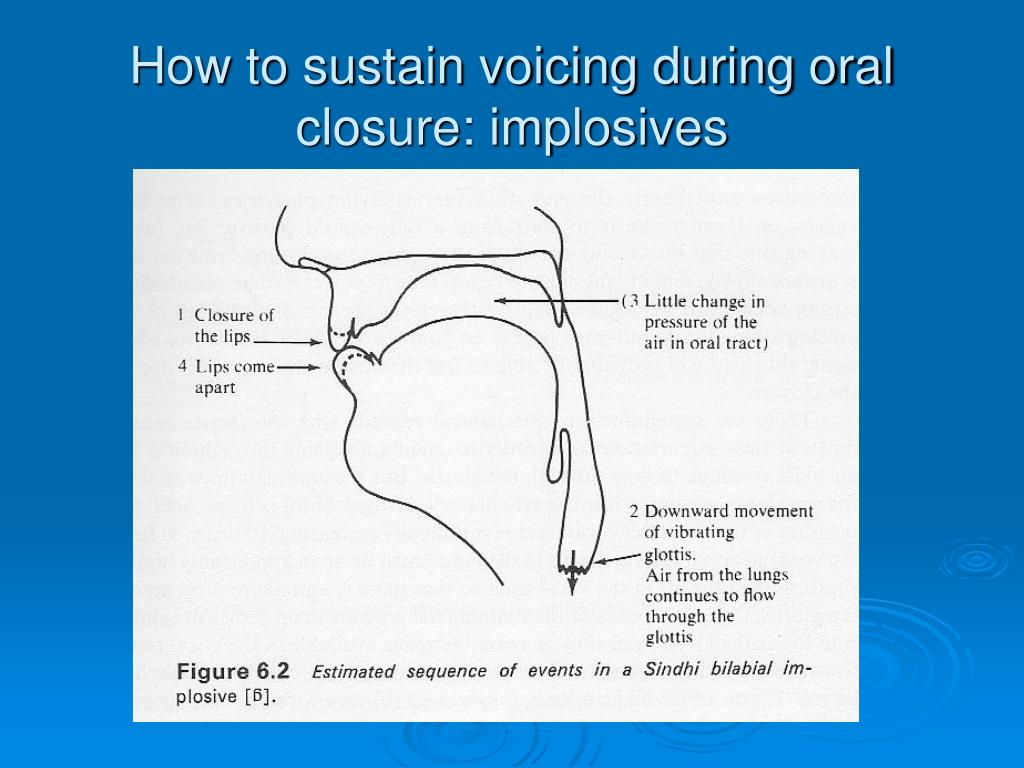 How to sustain voicing during oral closure: implosives