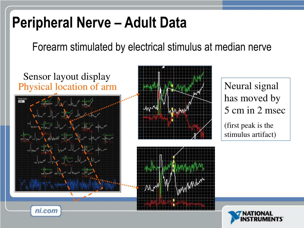 Forearm stimulated by electrical stimulus at median nerve