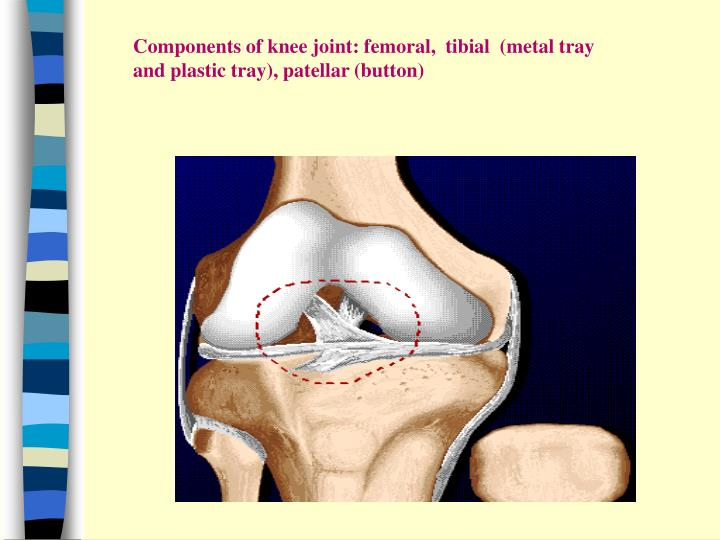 Components of knee joint: femoral,  tibial  (metal tray and plastic tray), patellar (button)