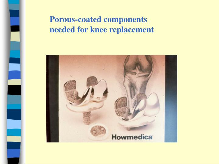 Porous-coated components needed for knee replacement